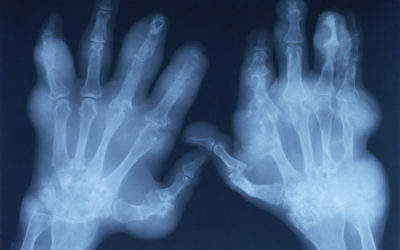 Genes to blame for gout, not food