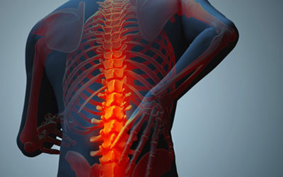 Staying fit and healthy despite ankylosing spondylitis