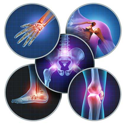 Help shape a new handbook for people with osteoarthritis
