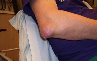 27 September 2018 – Drop in clinic for gout arthritis and arthritis
